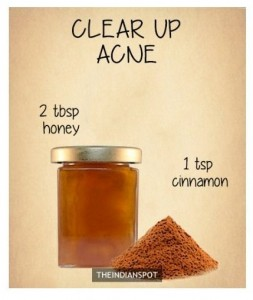 DIY-Beauty-hack-to-get-rid-of-acne